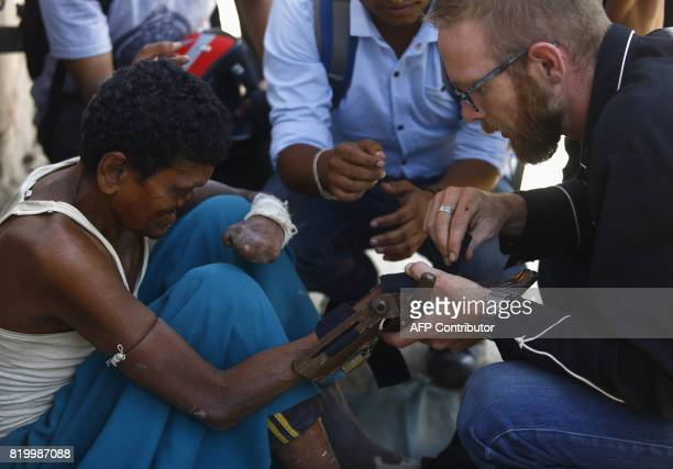 This photo taken on July 14 2017 shows Disaster Hack founder Matthew Rockwell attaching a 3D printed prosthetic hand to leprosy sufferer Ram's arm in...