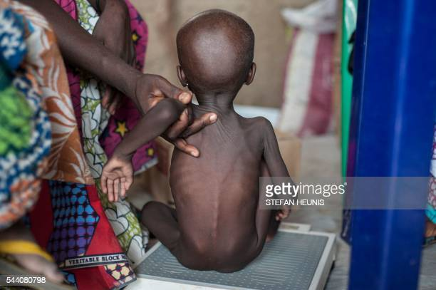 TOPSHOT This photo taken on June 30 2016 shows a young girl suffering from severe acute malnutrition getting weighed at one of the Unicef nutrition...