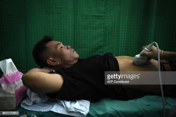 This photograph taken on May 19 2017 shows a man getting an ultrasound during a CASCAP event in the northeastern Thai province of Kalasin Millions of...