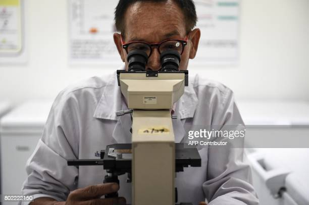 This photograph taken on May 19 2017 shows a researcher looking for flatworm eggs in urine samples under a microscope at Khon Kaen University in the...