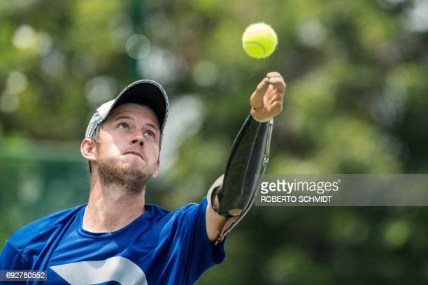 TOPSHOT This photograph taken on May 31 2017 shows tennis player Alex Hunt lobbing the ball with his prosthetic arm before delivering a serve during...