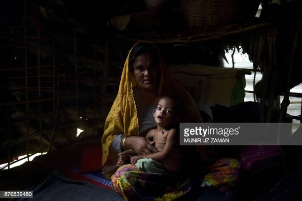 TOPSHOT This photograph taken on November 16 2017 shows threeyearold Rohingya refugee girl Modina who is suffering from malnutrition sitting on her...