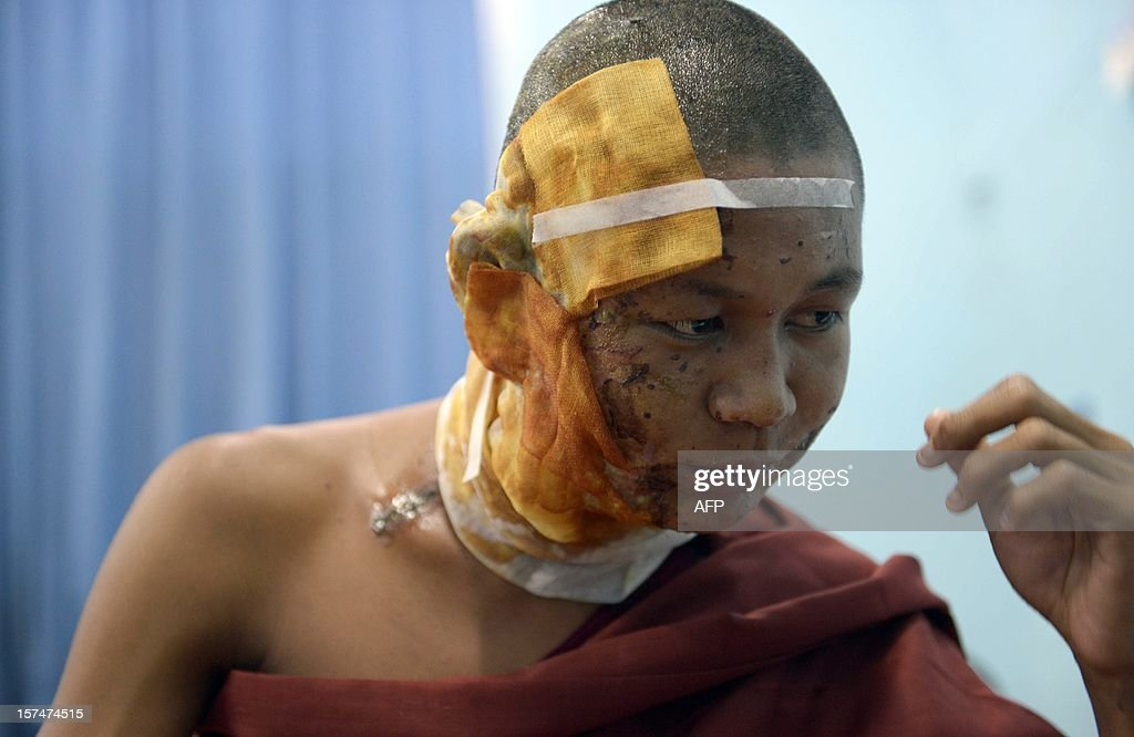 This picture taken on December 3, 2012 shows a Buddhist monk who was injured in a crackdown on a protest at a Chinese-backed copper mine in Monywa, northern Myanmar, resting at a hospital after he was transferred for better treatment to Mandalay. Myanmar opposition leader Aung San Suu Kyi will lead a probe into the crackdown which will also assess the future of the contested project, the president's office said. AFP PHOTO/Ye Aung THU