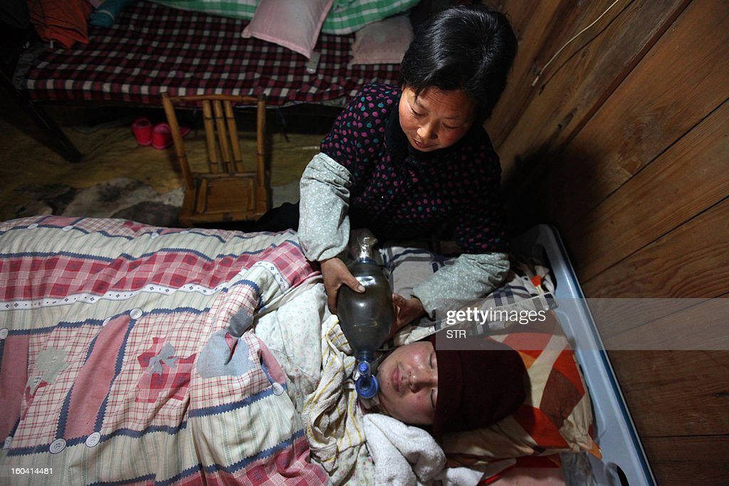 This picture taken on January 28, 2013 shows Wang Lanqin (top) compressing a PVC resuscitator pump to help her son Fu Xuepeng, a former mechanic who was paralyzed in a road accident when he was 23 years old, to breathe and live on in their home in Taizhou, east China's Zhejiang province. According to state media, a local hospital has decided to help Fu's parents after reports that they have kept their son alive for more than five years using a hand pumped PVC resuscitator bag and a ventilator made by a local DIY expert. They took turns compressing their son's bag 24-hours a day, seven days a week, until they had someone making them a medical ventilator with a motor, a speed controller, a pushing bar and an air bag, which cost 200 yuan (32 USD). But to minimize the electricity bill, which adds up to 5 to 6 yuan a day if the machine is left running all day, the couple still compresses the bag by hand during the day and turns on the machine only at night. CHINA