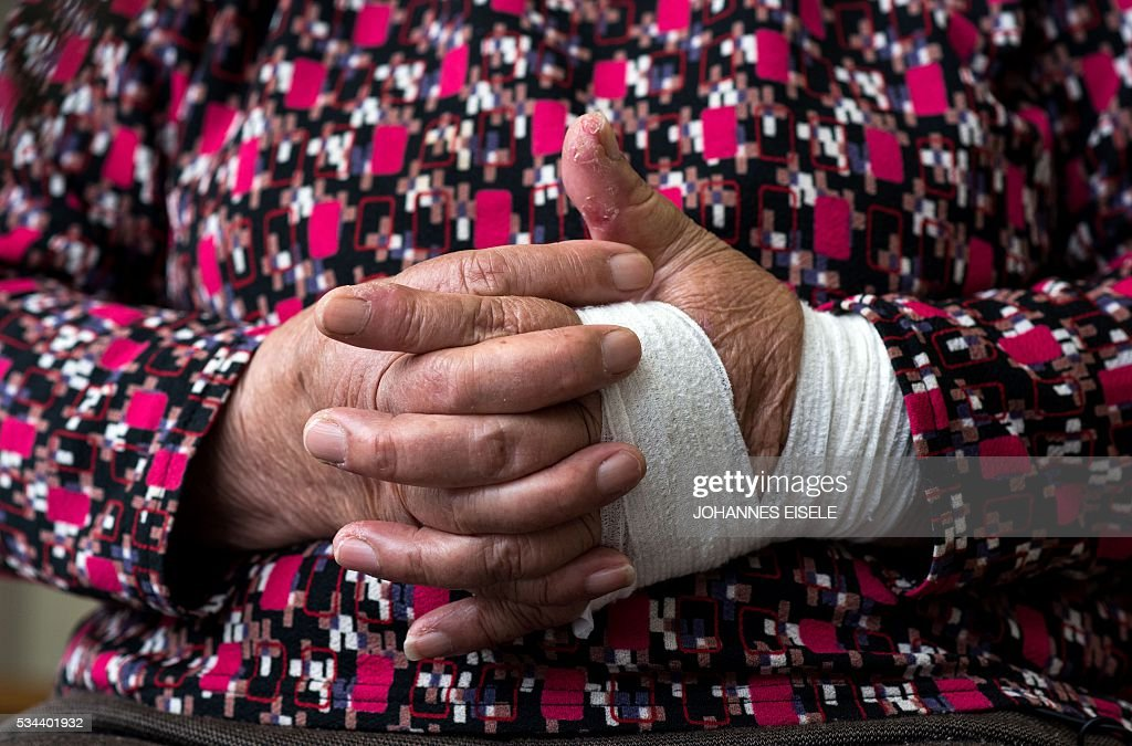 This picture taken on May 26, 2016 shows the hands of Hiroshima bombing survivor Misako Katani, 86, as she poses for a photo at a nursery home in Hiroshima Prefecture. Katani, who survived the Hiroshima blast August 6, 1945, was then again exposed to radiation in Nagasaki shortly after that city was bombed on August 9. US President Barack Obama is set to become the first sitting US president to visit one of the bomb sites when he journeys on May 27, 2016 with Japanese Prime Minister Shinzo Abe to Hiroshima, hallowed ground to Japanese but, for more than 70 years, a no-go zone for 11 of his Oval Office predecessors. / AFP / JOHANNES