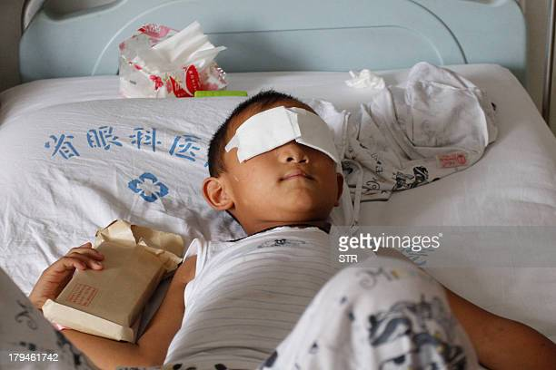 This picture taken on September 3 2013 shows sixyearold boy Guo Bin known as BinBin who was blinded when his eyes were gouged out after he went...