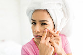 Closeup portrait of woman squeezing pimple with fingers at home
