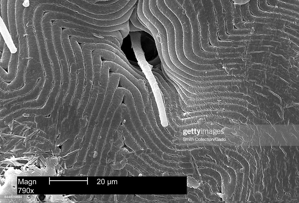 This scanning electron micrograph depicts a dorsal view of the back of an American dog tick Dermacentor variabilis magnified 790X enabling you to see...