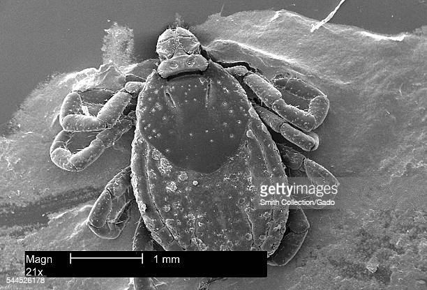 This scanning electron micrograph presents a dorsal view of an American dog tick Dermacentor variabilis magnified 21X 2002 Ticks are of the class...