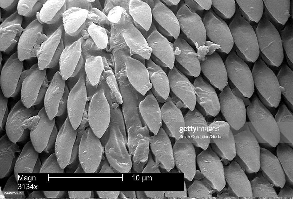 This scanning electron micrograph shows us an enlarged view of mouth parts of an American dog tick Dermacentor variabilis magnified 3134X 2002 Ticks...