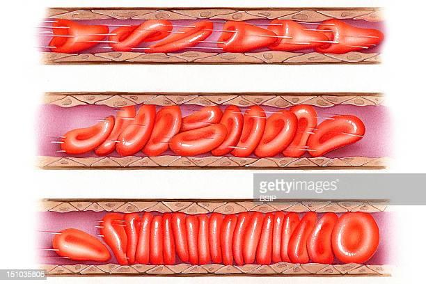 Three Steps Of Capillary Blood Circulation From Top To Bottom Good Circulation Slow Circulation And Bad Circulation