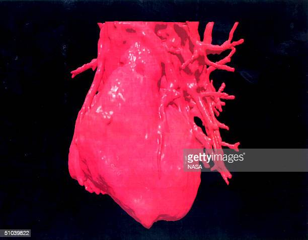 ThreeDimensional Image Displays A Computerised Visualization Of A Human Heart These Images Were Reconstructed From A Formatted Ct Scan Using RossCt...