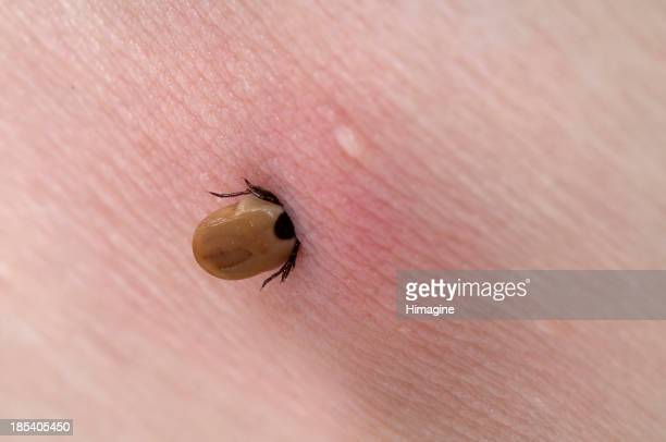 Tick stuck in the skin