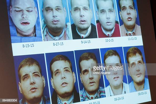 A timeline of Patrick Hardison's recovery a former firefighter from Mississippi who received a facial transplant is displayed on a screen during a...