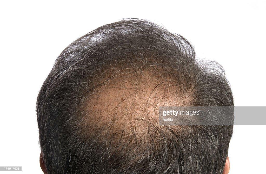 to become bald