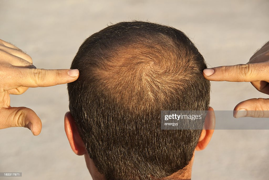 to become bald