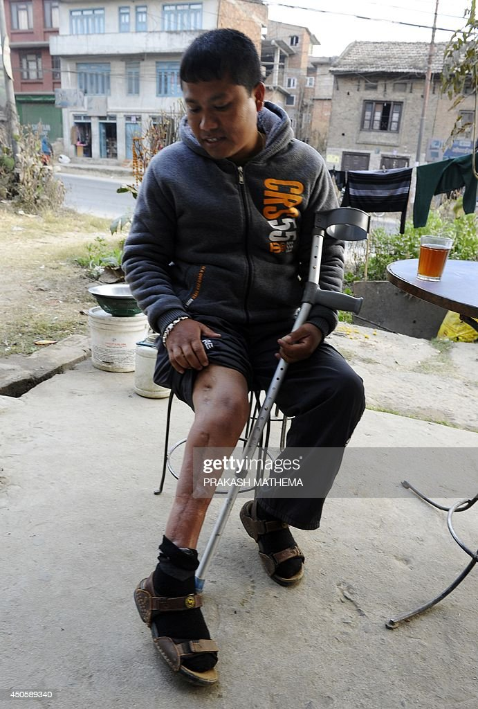 To go with AFP Story Fbl-WC-2022-Nepal-labour-rights BY In this photograph taken on January 14, 2014, Nepalese former migrant worker Bhupendra Malla show injuries to his leg as he speaks during an interview with AFP in Kathmandu. A broken leg, a metal crutch and piles of paper testifying to his fight for justice: all reminders of Bhupendra Malla's stint working for a Qatari construction firm, ahead of the 2022 World Cup. As the 32-nation tournament gets underway in Brazil, the oil-rich emirate of Qatar has come under fire for allegedly bribing officials to secure 2022 hosting rights and over the abusive conditions endured by migrant workers like Malla. AFP PHOTO/Prakash MATHEMA