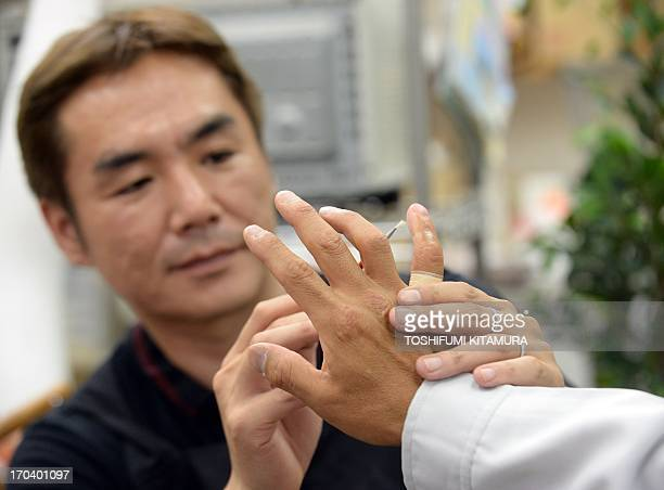 To go with AFP story 'Japansocietycrimeyakuza' Feature by Harumi Ozawa In this picture taken on on May 27 prosthetics specialist Shintaro Hayashi...