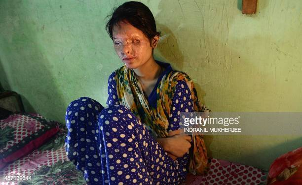 To go with IndiarightswomeninternetFOCUS by Rachel O'Brien In this photograph taken on October 10 2014 Indian acid attack survivor Reshma rests in...
