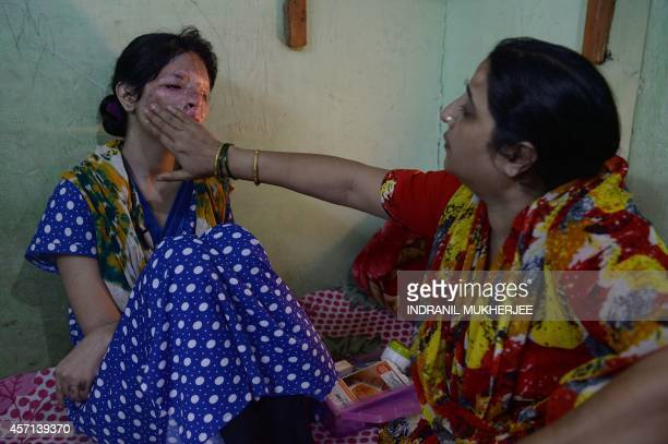 To go with IndiarightswomeninternetFOCUS by Rachel O'Brien In this photograph taken on October 10 2014 the mother of Indian acid attack survivor...