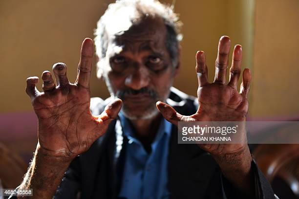 the social and medical constructions of leprosy Internal exclusion of leprosy sufferers: dual ambivalence and  the social construction  a study of social and cultural influences on leprosy patients .