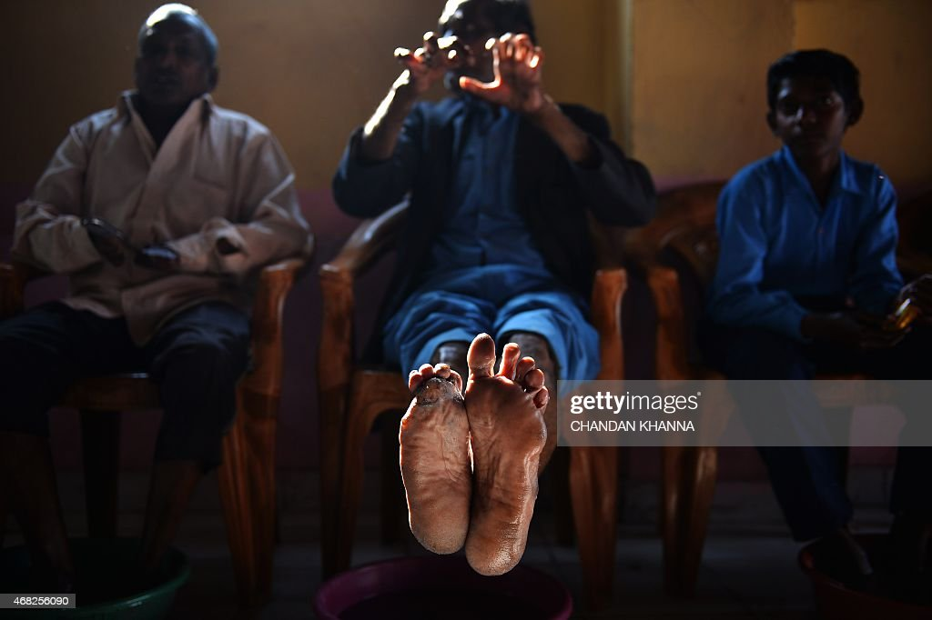 To go with IndiasocialhealthleprosyFEATURE by Abhaya SRIVASTAVA In this photograph taken on March 11 cured leprosy patient Shiv Shankar Tiwari shows...