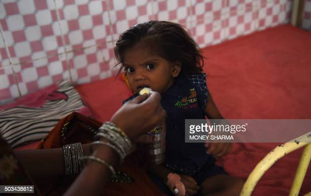 To go with 'IndiaSocialPovertyMalnutrition' FEATURE by Agnes BUN In this photograph taken on October 19 three year old malnourished Indian child...