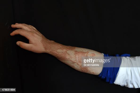 To go with story 'AfghanistanunrestwomenmilitiasFOCUS' by Anuj Chopra In this photograph taken on May 20 twenty year old Afghan acid attack victim...