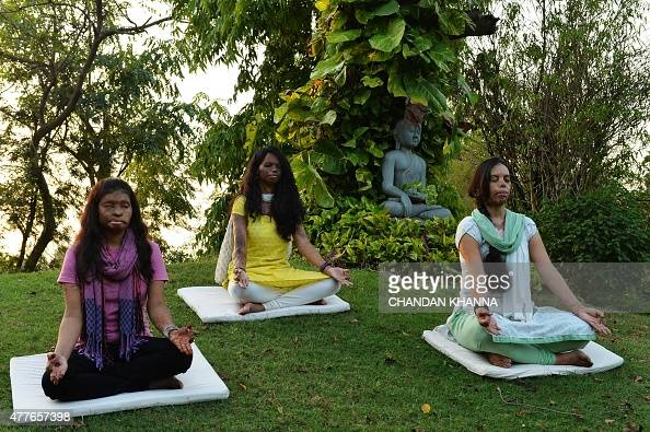 To go with story 'Indialifestyleyogagovernment' by Annie BANERJI In this photograph taken on June 14 Indian acid attack survivors 20 yearold Rupa 26...