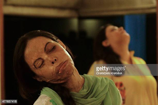 To go with story 'Indialifestyleyogagovernment' by Annie BANERJI In this photograph taken on June 14 30 yearold Indian acid attack survivor Sonia...