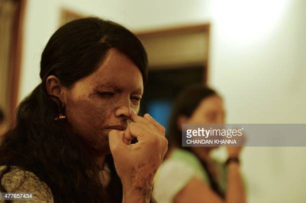 To go with story 'Indialifestyleyogagovernment' by Annie BANERJI In this photograph taken on June 14 26 yearold Indian acid attack survivor Laxmi...