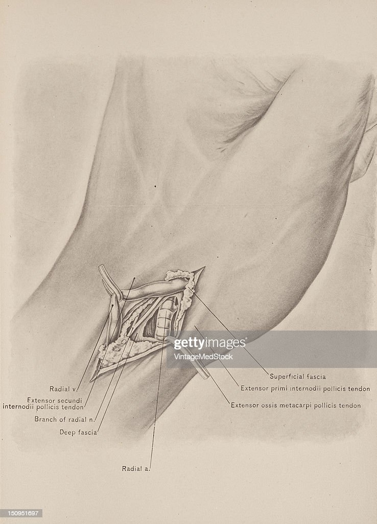 "To ligate the radial artery in the ""anatomic snuffbox"" carry an incision in the long axis of this triangluar interval midway between the extensores..."