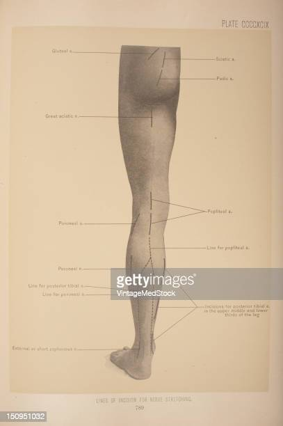To reach the nerve an incision should be made along the middle of the thigh beginning on a level with the lower border of the gluteus maximus muscle...