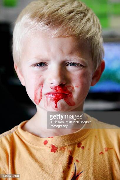 Toddler boy with Nosebleed Portrait