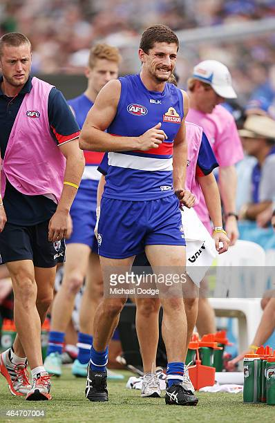 Tom Liberatore of the Bulldogs hobbles off with a leg injury during the NAB Challenge AFL match between the Western Bulldogs and the Richmond Tigers...