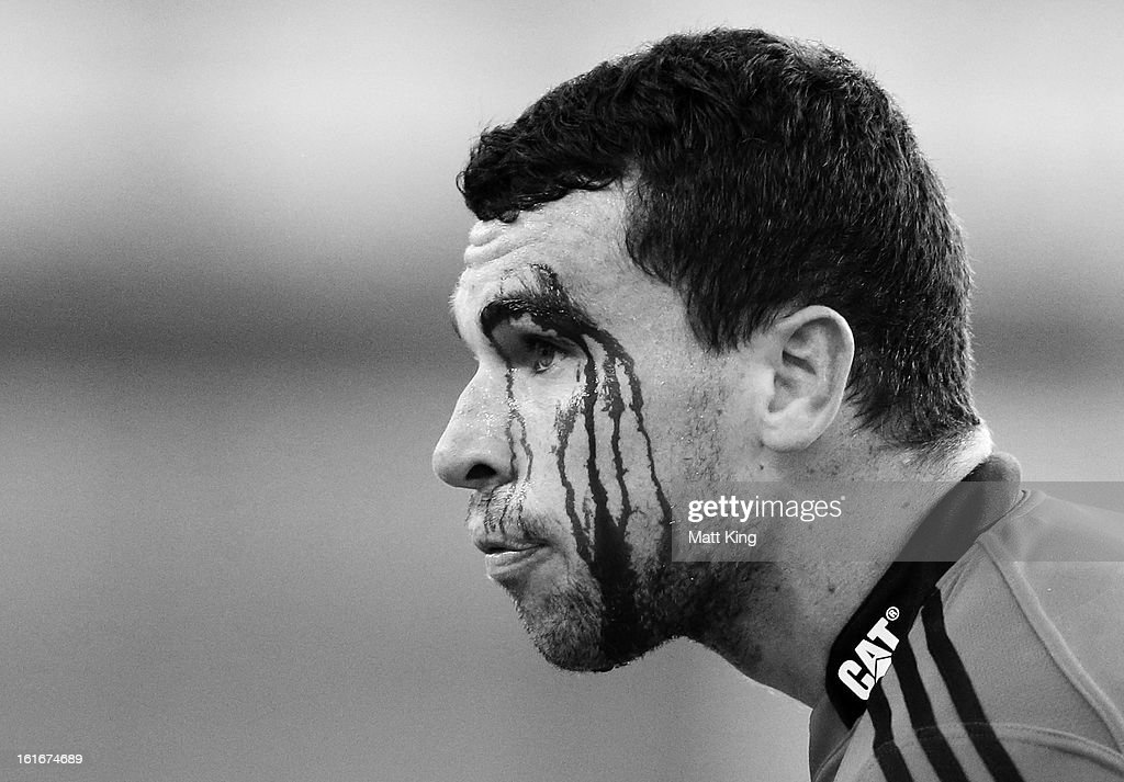 Tom Marshall of the Crusaders is treated for a cut to the head during the Super Rugby trial match between the Waratahs and the Crusaders at Allianz Stadium on February 14, 2013 in Sydney, Australia.