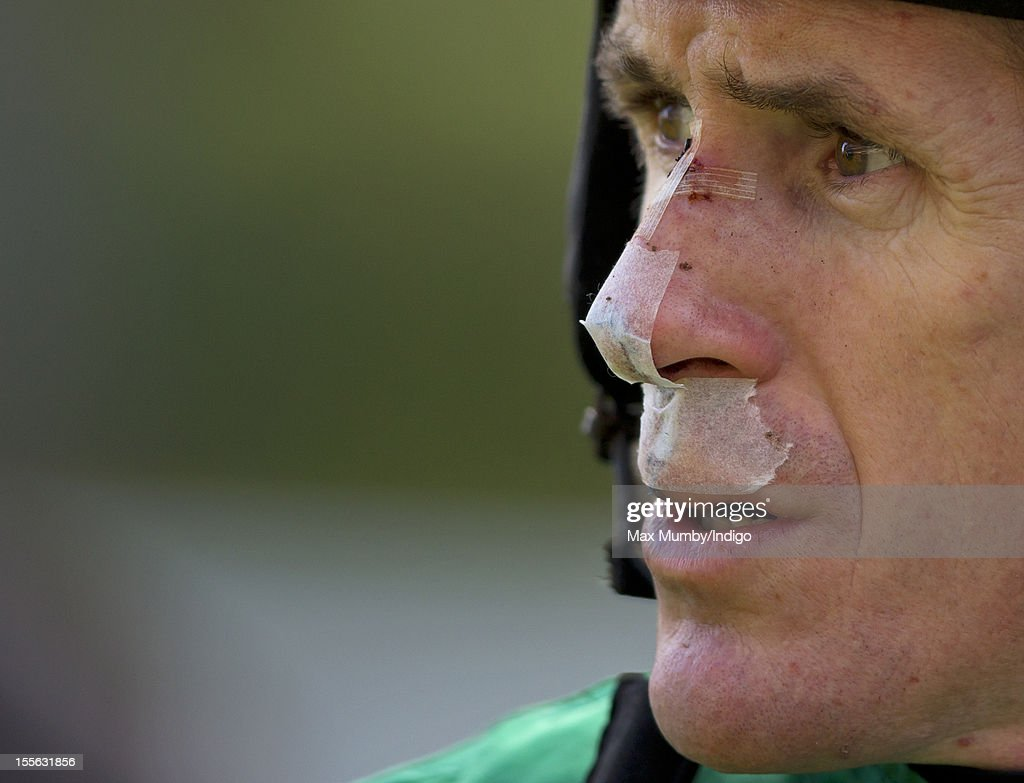 Tony McCoy with a bandaged, bloody, bruised and stitched face, nose and lip after being kicked in the face by a horse after a fall yesterday prepares to ride at Ascot Racecourse on November 03, 2012 in Ascot, England.