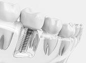 Tooth human implant. Dental concept. Human teeth or dentures. 3d rendering