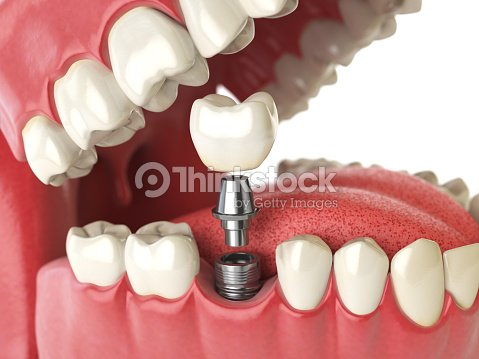 Tooth Implant Dental Concept Human Teeth Or Dentures Stock Photo ...