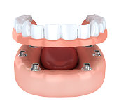 Tooth humman implantation, denture (done in 3d rendering)