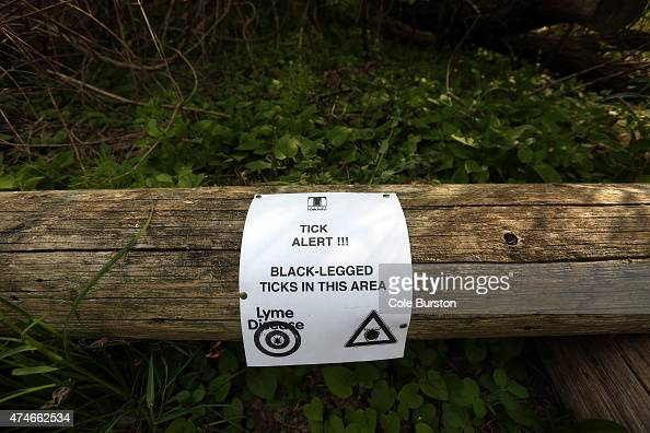 Toronto Canada May 24 A sign sits on a log on Algonquin Island part of the Toronto Islands where black legged ticks have been spotted and sent for...