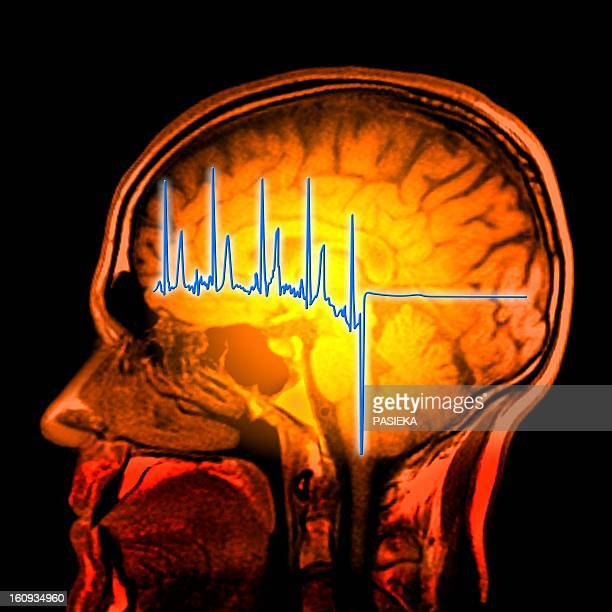 ECG trace and mri brain scan, artwork