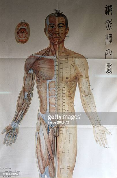 Traditional Chinese Medicine in Beijing China in 2003 China traditional medicine in Beijing Dong Zhi Men hospital Acupuncture Department Map of the...