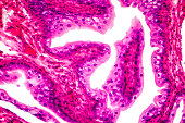 Transitional epithelium tissue of the urinary bladder under microscope, light micrograph, hematoxylin eosin staining