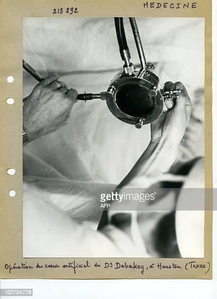 Transplantation cardiaque greffe du coeur Opération du coeur artificiel par le docteur Michael Debakey à Houston le 19 juillet 1963 First heart...