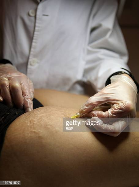 Treatment of cellulite and stretch marks by carboxytherapy