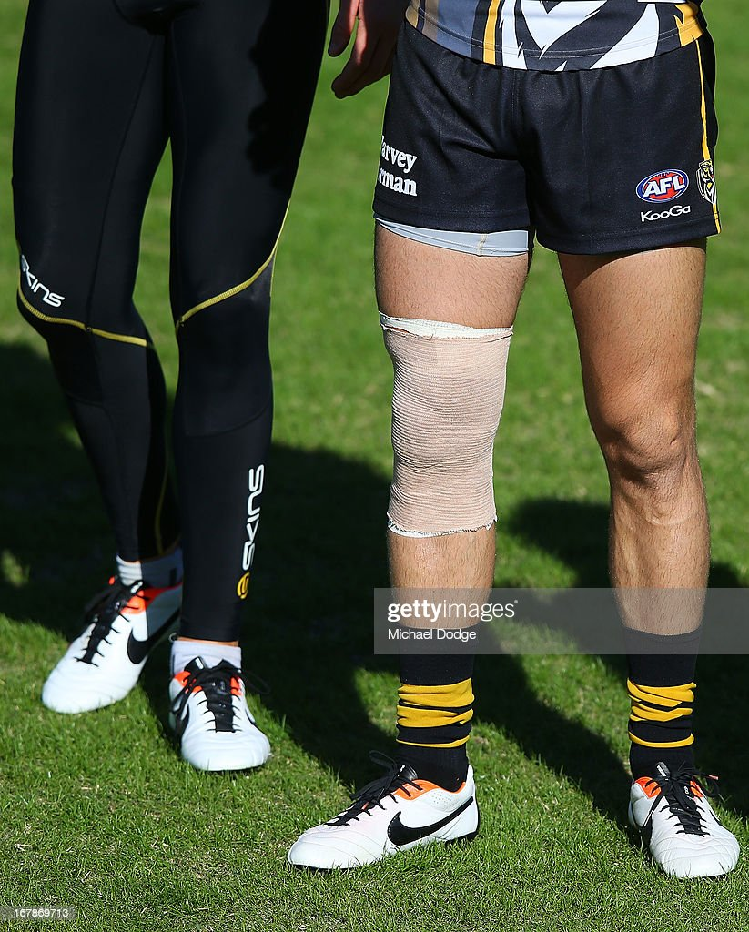 Trent Cotchin with the bandage on his leg during a Richmond Tigers AFL training session at ME Bank Centre on May 2, 2013 in Melbourne, Australia.