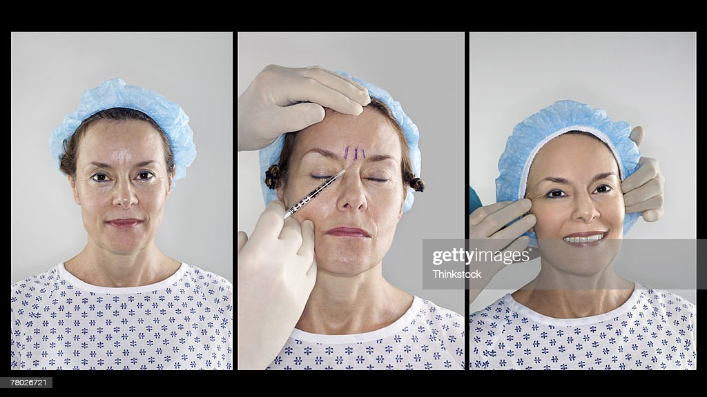 Triptych series of a woman receiving botox treatment, showing before, during and after the process
