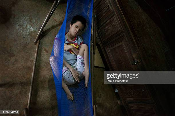 Trong Thi Kiev rests in a hammock she is blind and deaf suffering with Spina Bifida March 8 in Cam Lo in Quang Tri province Vietnam As a single...