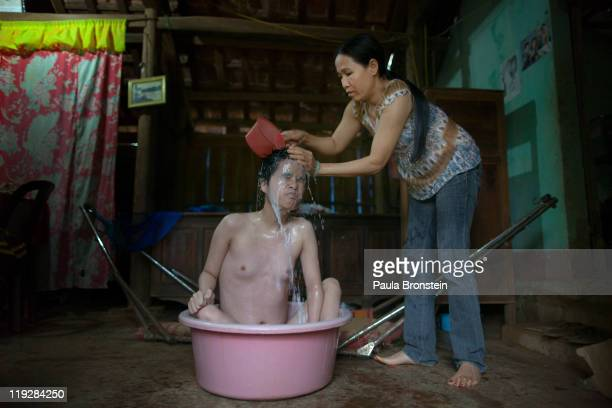 Trong Thi Thu bathes her daughter Trong Thi Kiev who is blind and deaf suffering with Spina Bifida at their home March 8 in Cam Lo in Quang Tri...